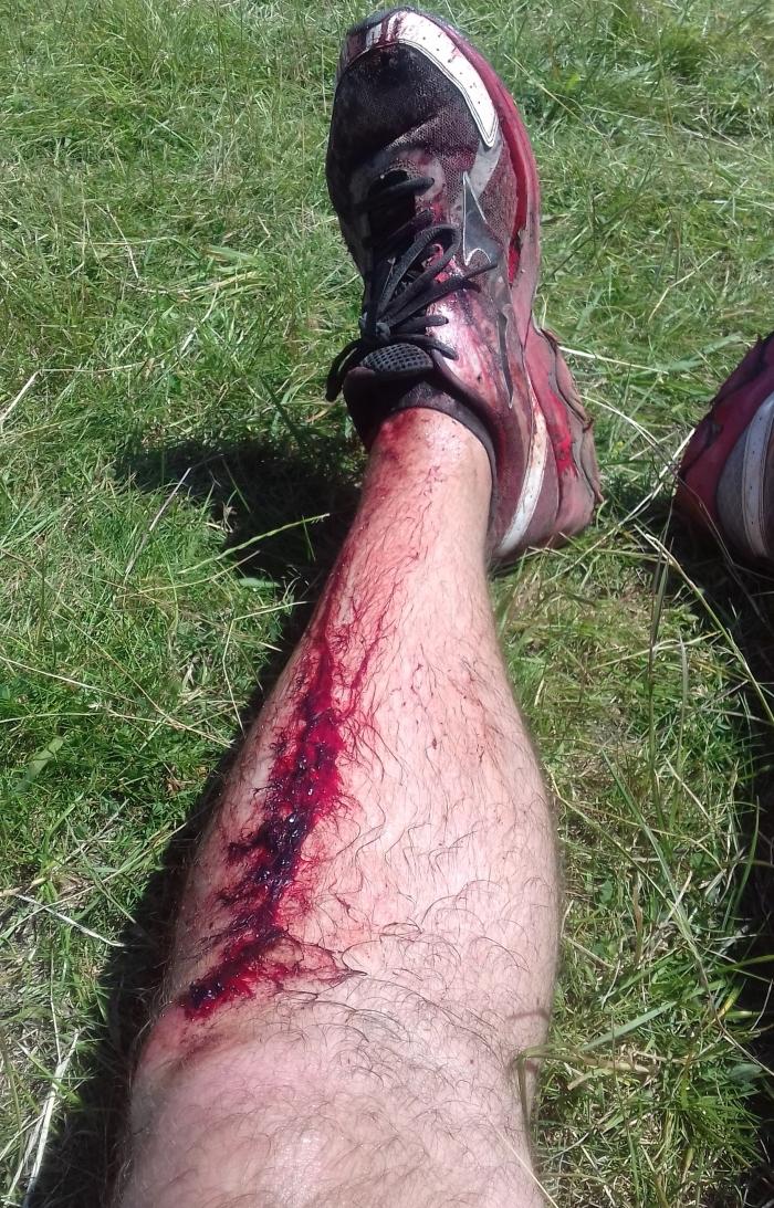 marathon runner injury